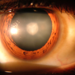 1280px-Cataract_in_human_eye